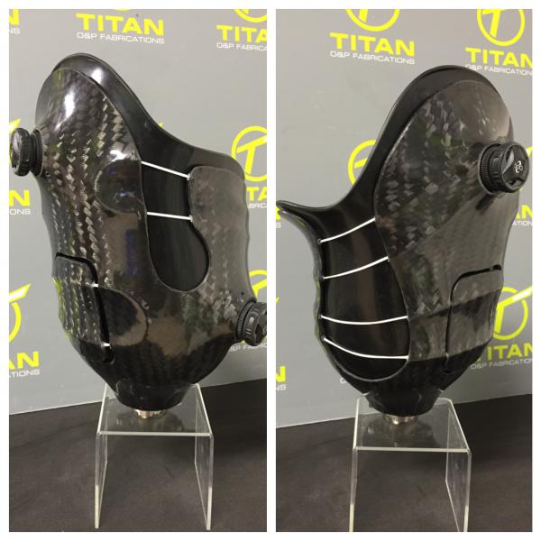 Transfemoral Multi Zone Socket Using Dual RevoFit Versa Kit Carbon Fiber